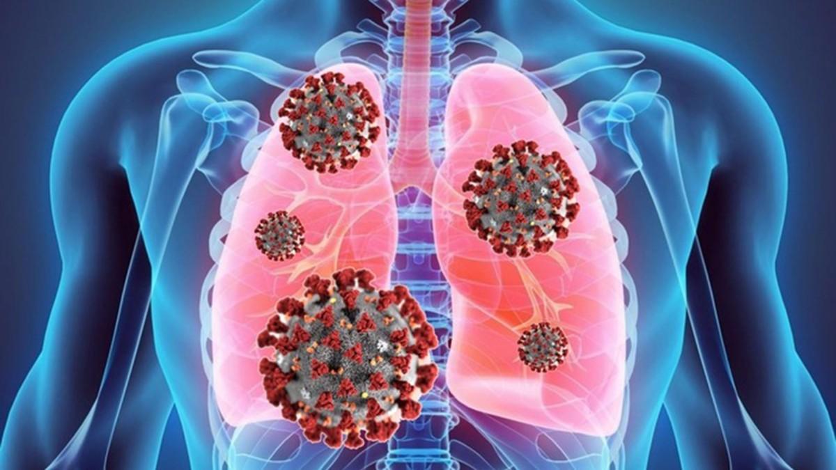 Covid-19: dopo l'infezione polmoni a rischio per 6 mesi e problemi respiratori cronici nel 30% deiguariti